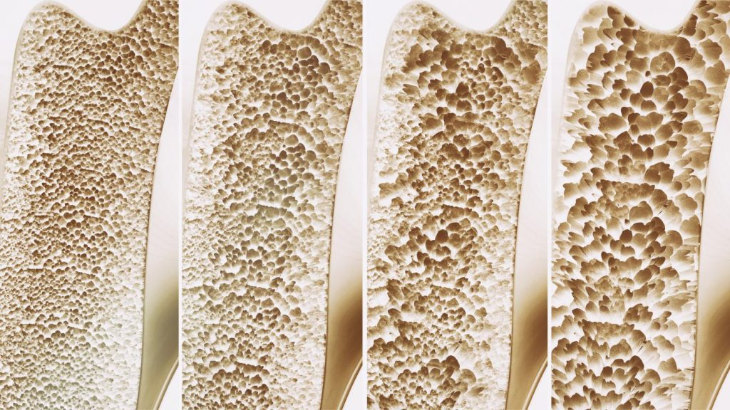 best cbd oil for osteoporosis